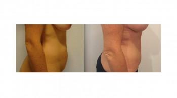 Addominoplastica prima e dopo intervento