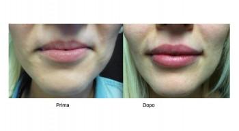 Aumento Labbra inferiore e superiore