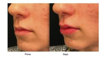 Aumento delle Labbra effetto naturale
