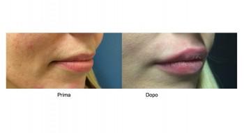 Aumento del volume delle Labbra
