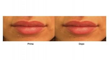 Aumento volume Labbra Prima e Dopo
