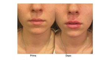 Filler acido ialuronico Aumento Labbra