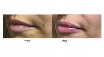 Filler per l'aumento delle labbra