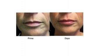 Filler per l'aumento del volume delle Labbra