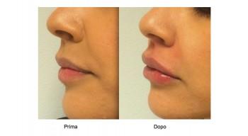 Medicina estetica filler labbra