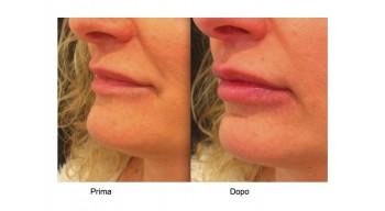 Medicina estetica filler aumento labbra