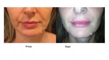 Medicina estetica filler per l'aumento naturale delle labbra