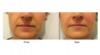 Filler di acido ialuronico per naso e bocca