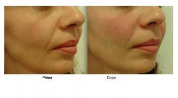 Filler acido ialuronico per il contorno labbra e bocca