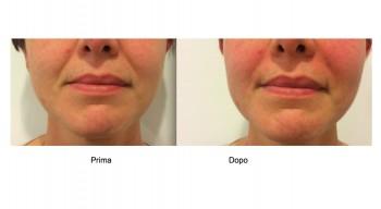 Filler acido ialuronico per le rughe naso geniene