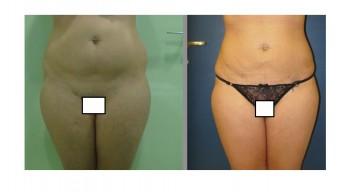 Liposuzione dell'addome e dei fianchi