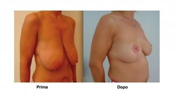 Foto mastopessi aumento seno