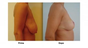 Foto intervento di mastopessi al seno