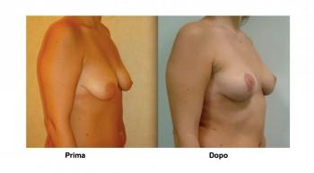 Foto mastopessi - lifting al seno