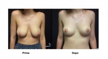 Foto mastopessi rassodamento seno