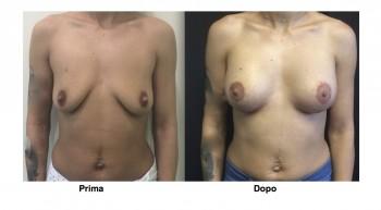 Foto mastopessi per rimodellare il seno