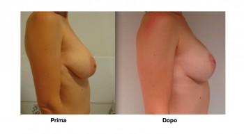 Foto mastopessi sollevamento mammelle