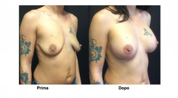 Foto mastopessi sollevamento seno