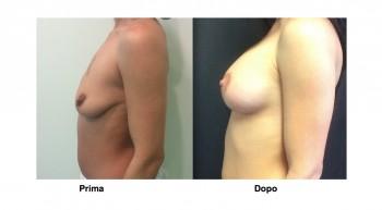 Foto mastopessi per sollevare il seno