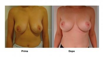 Foto mastopessi per sollevare seno