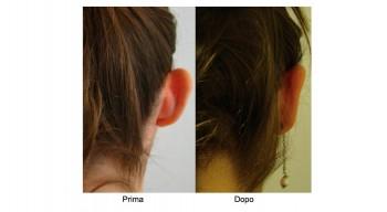 Otoplastica - correzione orecchie a sventola