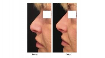 Rinofiller - rinoplastica non chirurgica per il naso